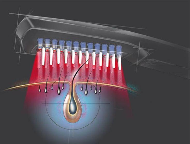 """Talk Fusion Video Newsletter ФОТО-БИОТЕРАПИЯ ДЛЯ ВОЛОС - ЛАЗЕРНОЕ ЛЕЧЕНИЕ БЕЗОПАСНО  ЭФФЕКТИВНО  БЕЗБОЛЕЗНЕННО Используется как дополнительное средство к традиционным способам лечения трихологических заболеваний.  Лазер для волос останавливает интенсивное выпадение и омолаживает клетки эпителия.  Процедура безболезненна, нетоксична и полностью безопасна. ЦЕНТР ВОССТАНОВЛЕНИЯ ВОЛОС МАДИНЫ МИРЗАКЕЕВОЙ """"HairDoctor"""" +7 (747) 429 09 79 +7 (707) 297 81 99"""