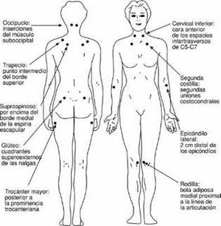 Puntos dolorosos de la fibromialgia .- Centro Pilates Aldapas Algorta-Getxo: Fibromialgia y Pilates