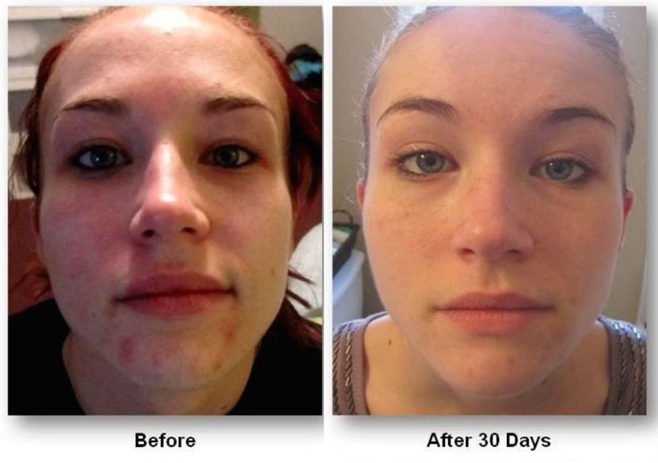 30days later visible change creates relief.