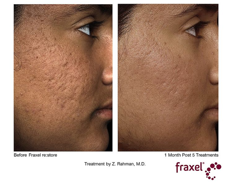 acne scars months after treatment