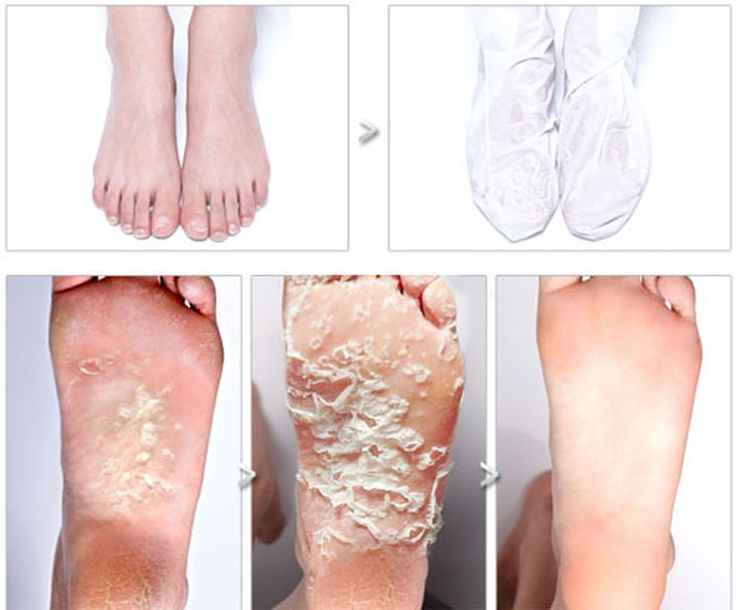 Baby Foot Peel Transformations: Your Disgusting New Obsession