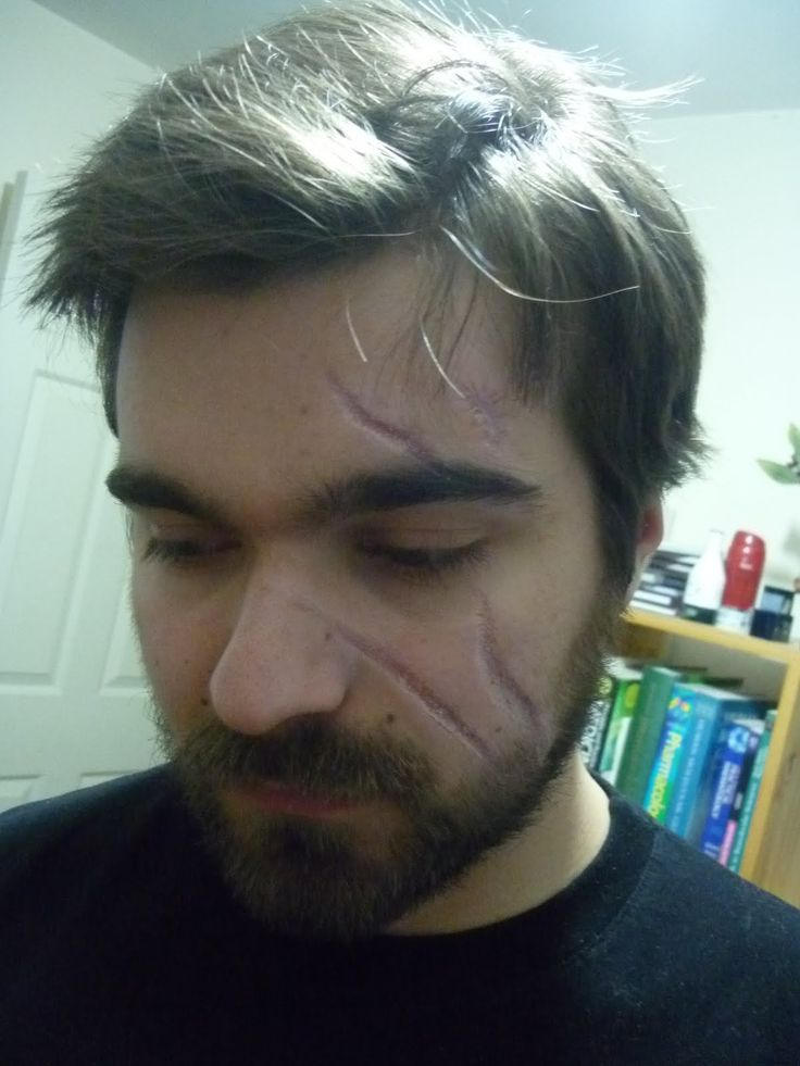 Men with facial scars