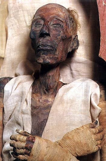 Mummy of Ramesses II (Ramesses or Ramses the Great 1303 BC - 1213 BC). His advanced age at death (over 90) is evident in his features.