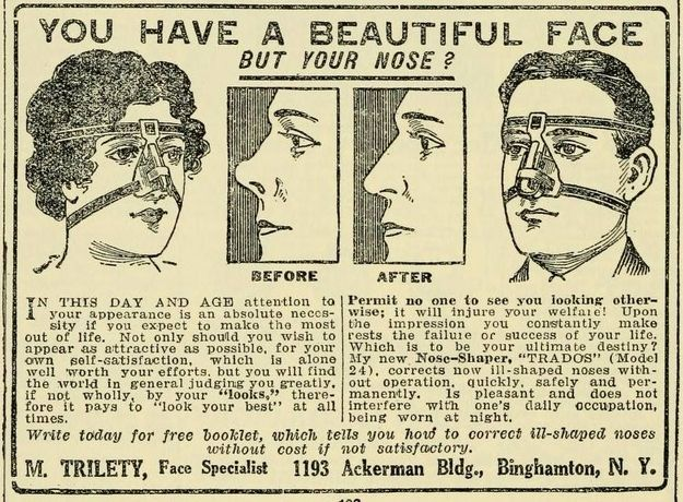 ☤ MD ☞✪ This nose shaper from 1920. See: http://www.pinterest.com/pin/287386019942160504/