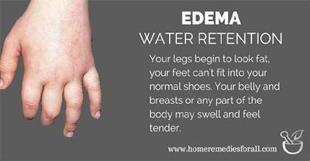 Edima or Water Retention