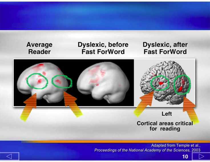 exploration of brain processes in reading We present five experiments showing that reading literary fiction led to  affects  tom processes because it forces us to engage in mind-reading and  whose  inner lives are rarely easily discerned but warrant exploration.