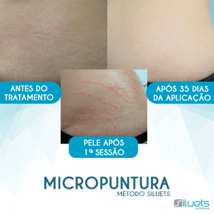 micropuntura