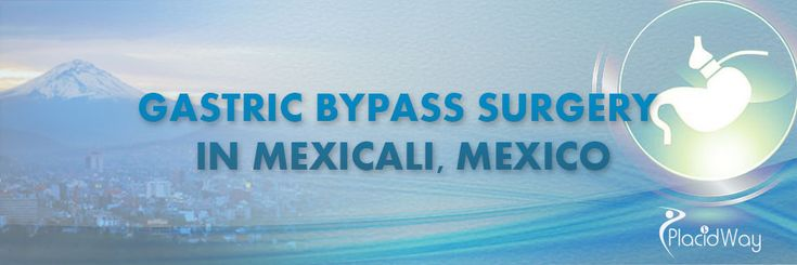 Gastric Bypass Surgery in Mexicali, Mexico #PlacidWayPatientExperienceinMexico #PatientTestimonialGastricBypassMexico