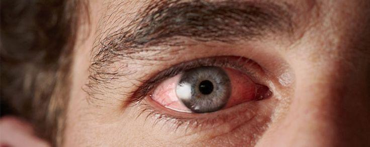 QUAL O MELHOR TRATAMENTO PARA CONJUNTIVITE?  http://dicasdesaude.blog.br/qual-o-melhor-tratamento-para-conjuntivite