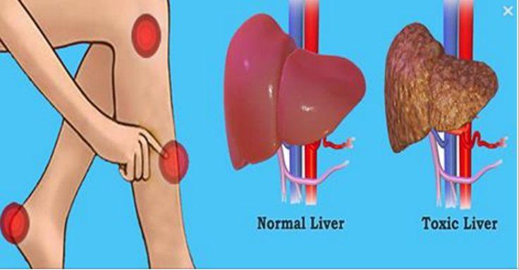 Nasza wątroba to jeden z najciężej pracujących organów w ciele, a także jeden z najważniejszych. Filtruje krew, neutralizuje toksyny i pełni wiele innych, ważnych funkcji.Jednak gdy w wyniku złej diety, pokrywa się ona tkanką tłuszczową, jej działanie zostaje zaburzone, a co za tym idzie, szkodliwe toksyny nie zostaną w pełni usunięte z naszego organizmu. Dlatego dbanie o wątrobę jest tak ważne.Poniższe symptomy mogą oznaczać, że twoja wątroba nie funkcjonuje prawidłowo.ciągłe…