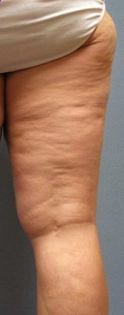 Best remedy for #Cellulite Thighs with no Surgery