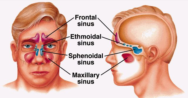 Sinusitis represents inflamed and swollen sinuses, often as a result of viral, fungal and bacterial infections or allergies. The most fr...