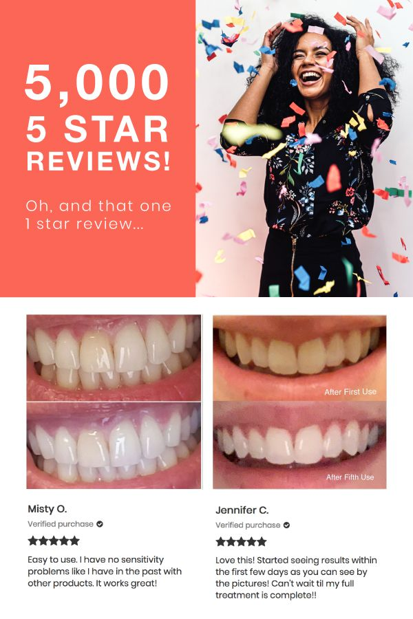 Glo Pop Teeth Whitening Reviews