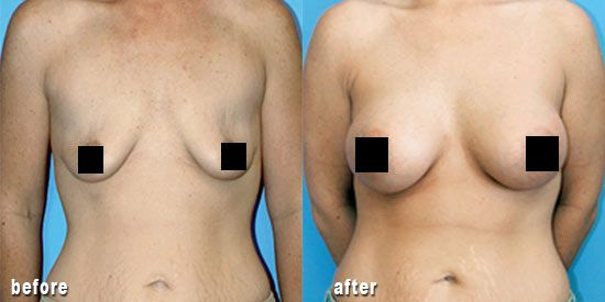 13 Best Before And After Images On Pinterest  Breast, Plastic Surgery -9322