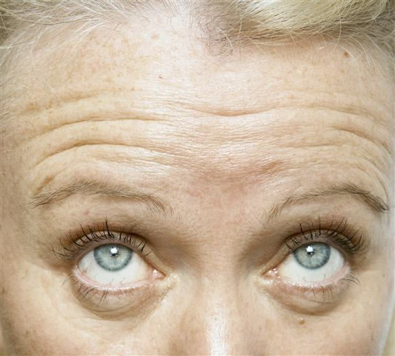 Anti Wrinkle Injection - BEFORE