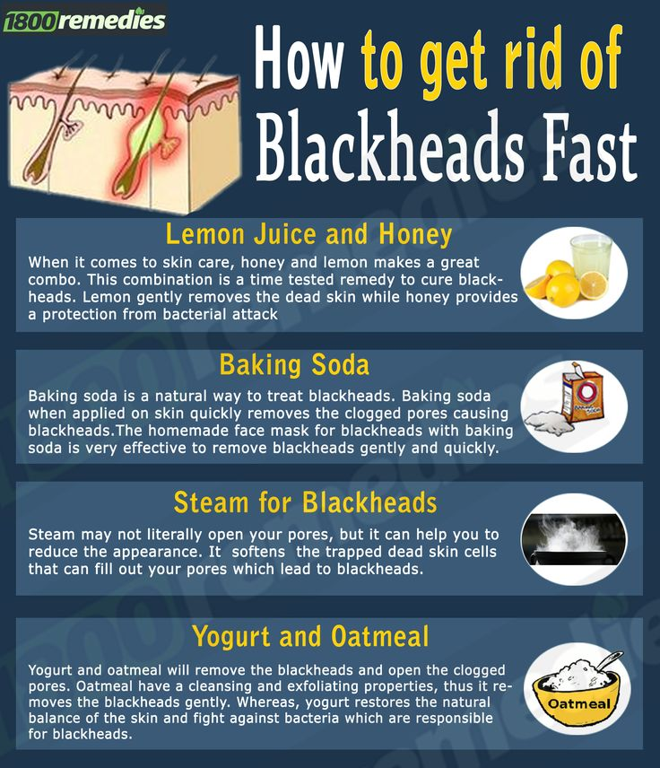 The home remedies are very easy to prepare as the ingredients are very commonly available in everybody's kitchen. So let us see the easy steps to get rid of blackheads fast.