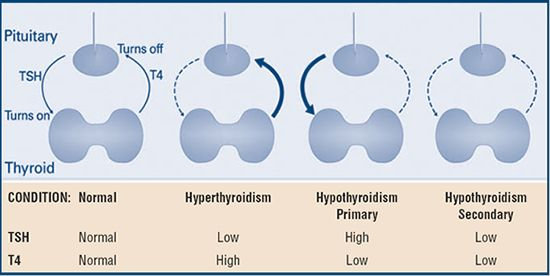 Thyroid Info from the American Thyroid Association