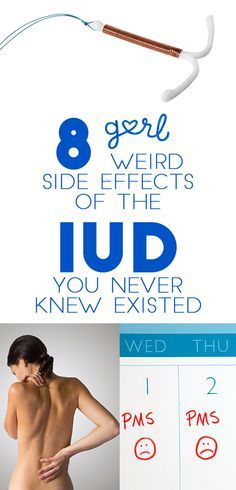 I don't know about you, but I honestly never knew what an IUD was until about a year ago. As a newbie to birth control (I just went on the pill last summer), I knew about the two typical methods- the pill and condoms. I recently learned that an IUD, more formerly known as an intrauterine device, is a tiny t-shaped plastic piece that is inserted into your uterus to prevent pregnancy.