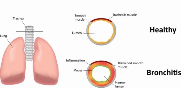 How to Treat Bronchitis? This article will help you to know the ways to treat bronchitis. Bronchitis is a kind of respiratory disease that is linked with your nose and lungs. In simple words bronchitis is caused due to inflammation that leads to swelling in the bronchial tubes (mucus membrane) that connects your nose to... #Bronchitis, #ClearChestCongestion, #ClearNasalCongestion, #CureNasalDrop, #GetRidOfADryCough, #GetRidOfCoughNaturally, #GetRidOfCoughOvernight, #GetRidO