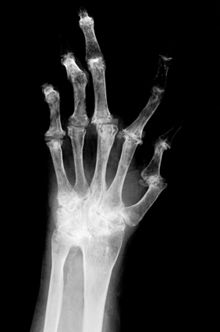 Bones Of The Hand X Ray