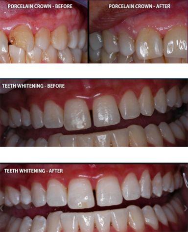 how to actually make teeth white
