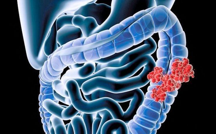 Οι τελευταίες εξελίξεις για τον καρκίνο εντέρου