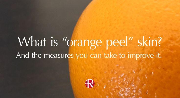 Orange peel skin - how to improve it.