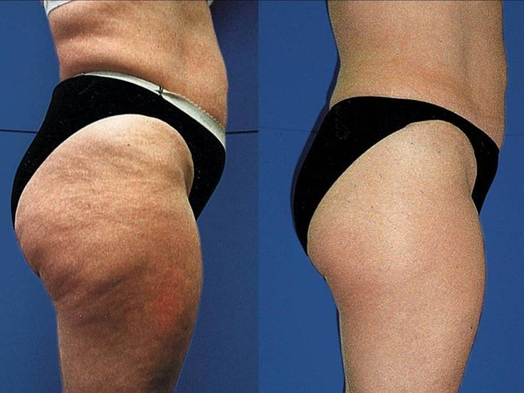 Five Steps To Ensure Safe Cellulite Removing http://vladbosach.bcz.com/2014/03/22/five-steps-to-ensure-safe-cellulite-removing/