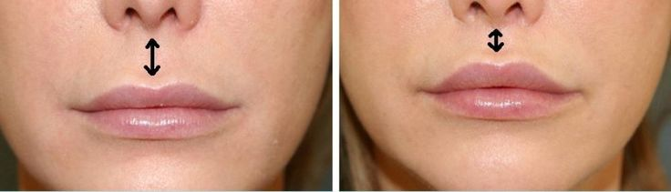 Lip Augmentation: A Procedure To Plump Up Thin Lips