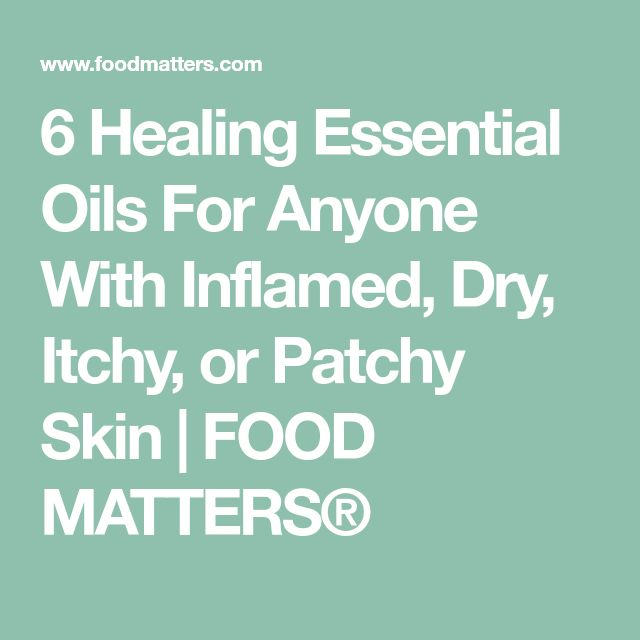 6 Healing Essential Oils For Anyone With Inflamed, Dry, Itchy, or Patchy Skin | FOOD MATTERS®