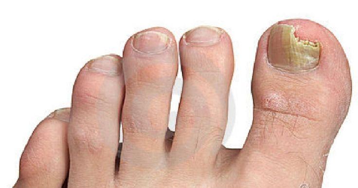 Le traitement de la dystrophie des ongles des pieds
