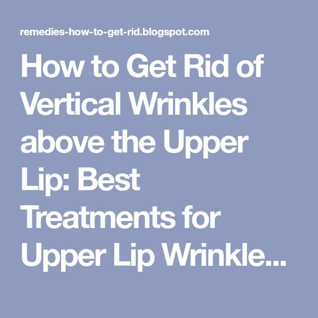How to Get Rid of Vertical Wrinkles above the Upper Lip: Best Treatments for Upper Lip Wrinkles or Smokers Lines