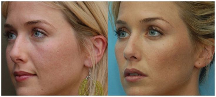 Juvederm Voluma before + after, how beautiful are these new cheek-bones?! Call us today for more information &/or to schedule your consultation