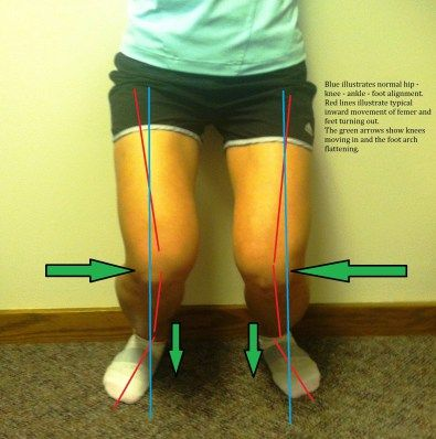 Does your knee rotate in when you do single-leg work (squats, etc)? This is an AWESOME explanation of femoral rotation, which happens to runners, lifters, etc when the glutes are UNDERactive and the hip flexors are OVERactive. A cause for shin splits and other pain. Plus how to FIX it (stretches/foamrolling for overactive muscles, isolated strengthening of underactive muscles)