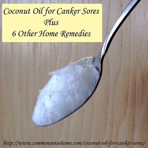 Coconut Oil for Canker Sores Plus 6 Other Home Remedies @ Common Sense Homesteading