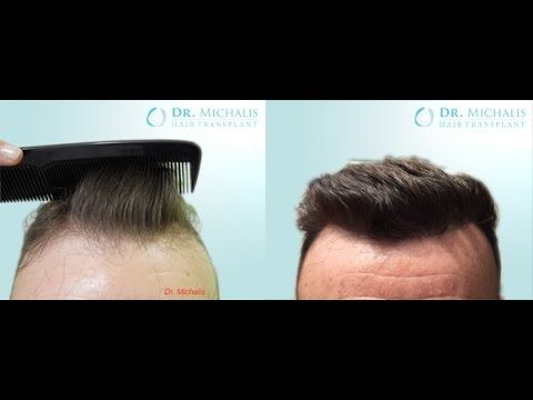 2400 Grafts FUE Hair Transplant unshaven respectively without shaving head/recipient area: for more information visit our website: http://www.hairtransplant-drmichalis.com/real-cases/
