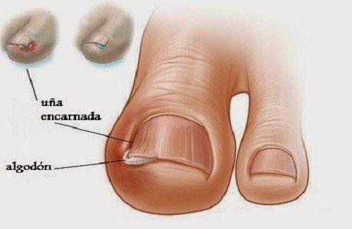 6 remedios ancestrales para aliviar las uñas encarnadas - Mejor con Salud