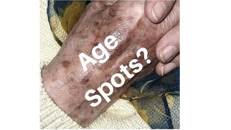 Dark Spots On Face Or Hands: Also Known As Age Spo…