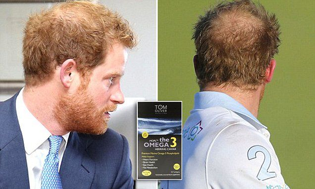 EXCLUSIVE: Harry, 32, shows signs of hair thinning, just like his balding brother and father. The royal uses Omega-3 supplements made with caviar oil, which are said to promote hair growth.