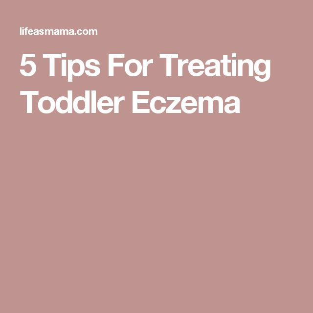 5 Tips For Treating Toddler Eczema