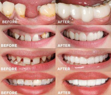 Snap-On Dentures в 2019 г.   Здоровье   Зубы и Здоровье