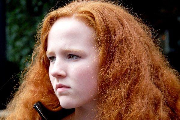 """Ondanks haar aangeboren afwijking plaatste Anne van Moersel uit Almere een selfie op internet. Ze kreeg talloze hartverwarmende reacties vanuit de hele wereld. Anne werd geboren met rood haar. """"Mensen moeten me maar accepteren zoals ik ben"""", zegt de 15-jarige Anne. """"Ik schaam me niet voor mijn afwijking. Ik doe dan ook geen moeite meer om mijn rode haar te [...]"""
