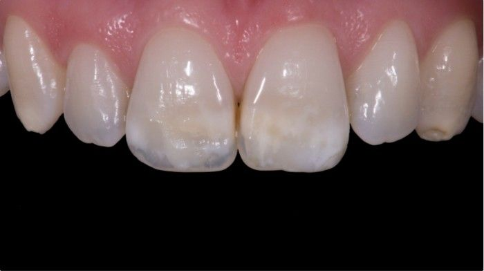 Removing white spots with deep infiltration technique