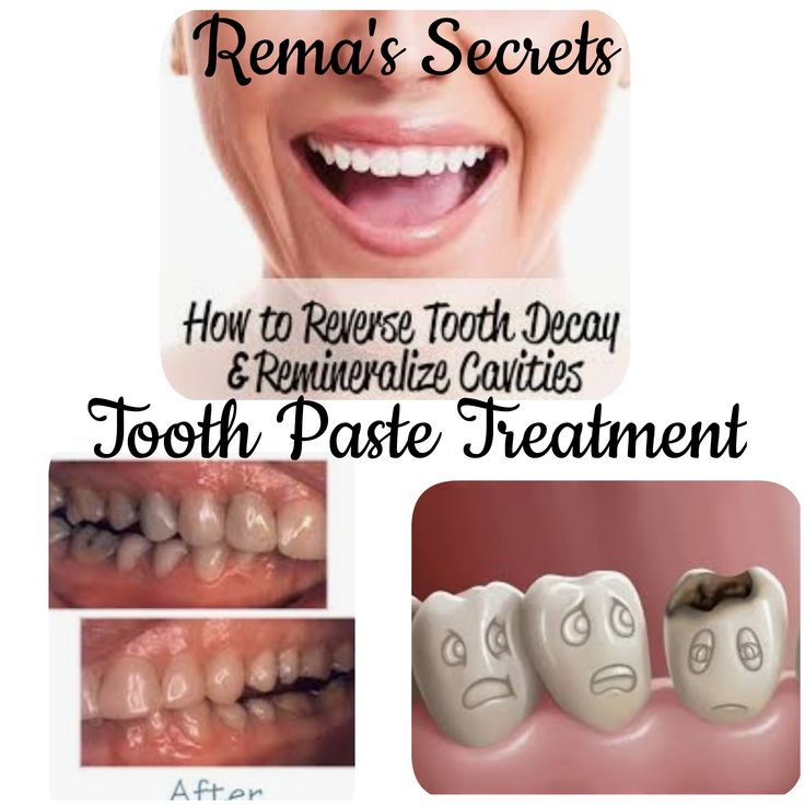 Remineralizing Tooth paste RemasSecrets Toothpaste