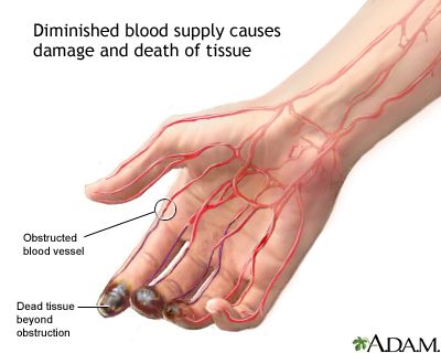 Thromboangiites obliterans -- affects heavy smokers: Males 20 to 40 (much less common in women) -- leads to obstruction of blood vessels in hands and fee, leading to dead tissue.