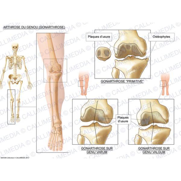 Arthrose du genou (gonarthrose)