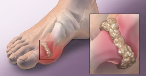 The definite foundation for gout still stays obscure, however exploration has demonstrated that a high measure of uric acid is most likely one of the reasons. Additionally hereditary qualities, liquor and absence of activity can be a reason. The side effects of gout are intense agony, swelling, serious delicacy and aggravation in the joints. Gout […]
