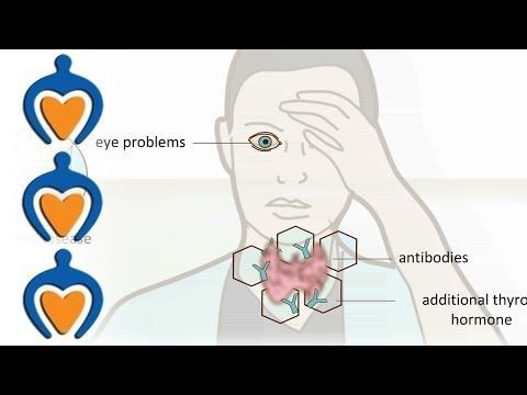 Thyroid problems - most common thyroid problems, symptoms and treatment - YouTube