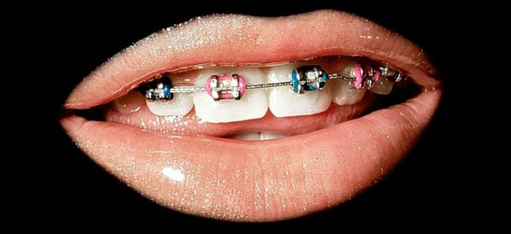 Invisalign - Straight Teeth Without Braces