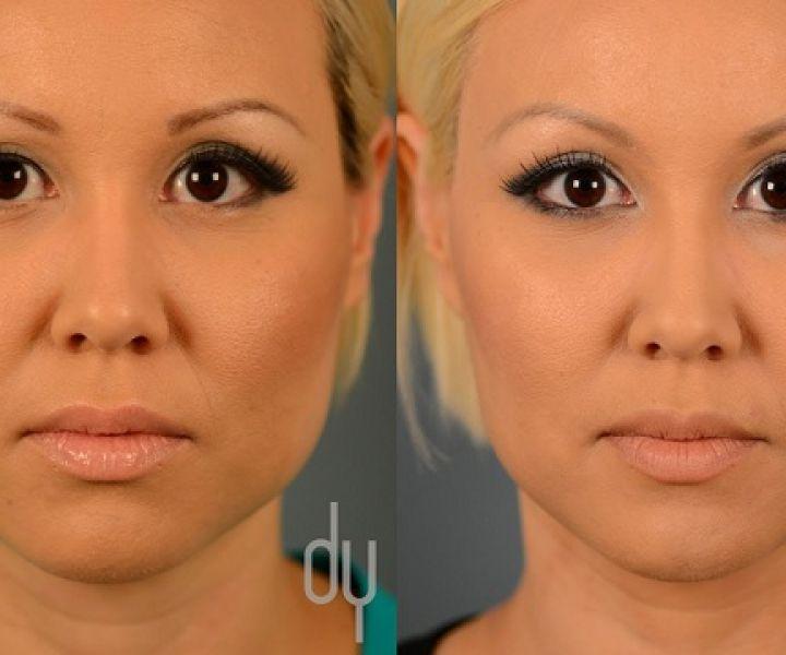 ADIO operații de mii de euro, bine ai venit mască de față mai bună decât botoxul, la doar 9 RON!